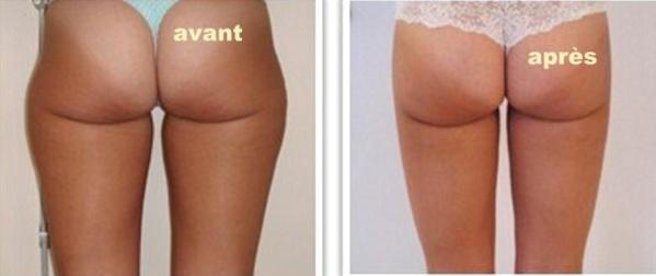 La liposuccion : une chirurgie esthétique de la silhouette